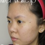 MURAD Acne Review