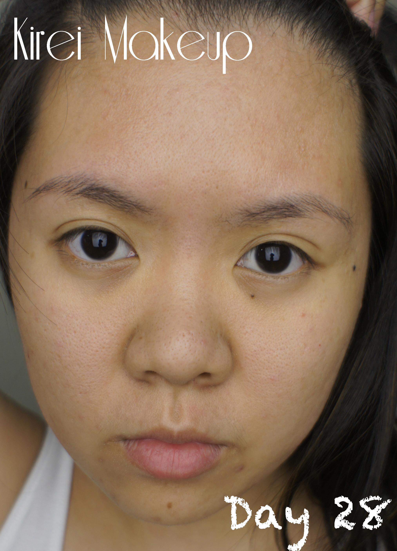 MURAD Acne Review